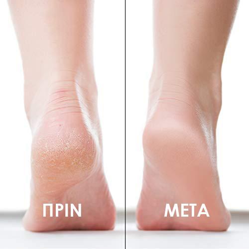 Πριν και μετά σκασμένα πόδια